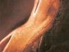 embrion-1-sem-postimplantacion.jpg