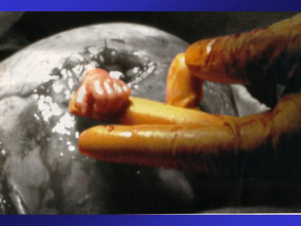 manita-en-utero